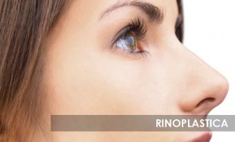 Rinosplastica